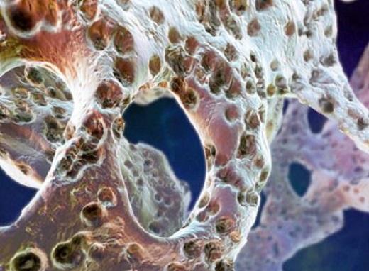 Всё об остеопорозе и его лечении